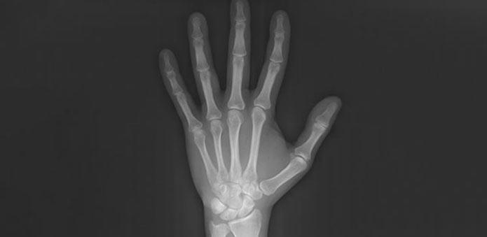 radiografia-carpal
